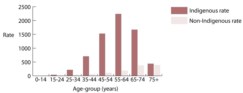 Rates (per million) of end-stage renal disease for Indigenous and non-Indigenous people, by age-group (years) 2007-2009